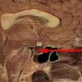 Gamma knife surgery for pituitary adenoma