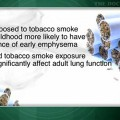 Childhood smoking exposure linked to early emphysema later in life
