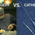 Cathether – based aortic valve replacement