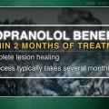Propranolol useful for severe infantile hemangiomas
