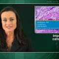 Trastuzumab-anastrozole combination improves metastatic breast cancer outcomes