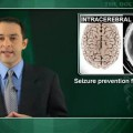 Phenytoin linked to worse outcomes after intracerebral hemorrhage