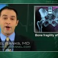 Radiotherapy for cervical cancer increases pelvic fracture risk