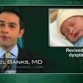 Watchful waiting an option for mild hip dysplasia in newborns