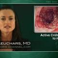 Infliximab plus azathioprine effective for stubborn Crohn's disease