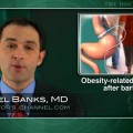 No reduction in obesity-related cancers seen after surgical weight loss