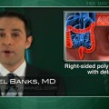 Risk of delayed bleeding higher with right-sided polyp removal