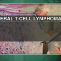 Romidepsin effective for refractory peripheral T-cell lymphoma