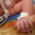 Less invasive protocol helps preemies breathe easier in limited resource settings