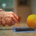 Step-up therapy favored for early rheumatoid arthritis