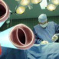 Simplified approach effective in aortic valve replacement