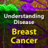 Breast Cancer Video Gives Patients Visual Break Down of Condition