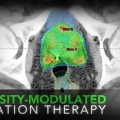 New Radiation Therapy Technology for Prostate Cancer Treatment