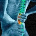 Who Gets Post-Op Chronic Pain? A Brain Scan Might Tell.