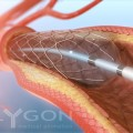 Drug Eluting Stents Associated with a Significant Reduction in Target Vessel Revascularization for Diabetes Patients
