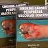 Australian Court Mandates Graphic Warnings on Cigarettes Packs