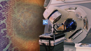 Intensive Surveillance for Choroidal Melanoma Metastasis Raises Secondary Cancer Risk