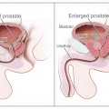New Noninvasive Treatment Shrinks Prostate