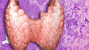 Incidence of Thyroid Microcarcinoma Varies Widely
