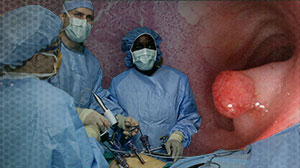 Outcomes Reassuring for Laparoscopic Rectal Cancer Surgery