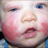 What's Your Diagnosis? Sudden Purpuriform Rash in an Infant