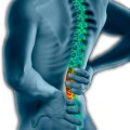 Antibiotics Found to Relieve Back Pain After Disc Herniation