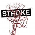 Ultra-Early Thrombolysis Proves Beneficial for Stroke Treatment