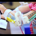 3D-Printed 'Magic Arms' Give Hope for Girl with Rare Congenital Disease