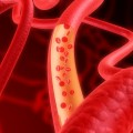 Post-Surgical Blood Clots Not an Indicator of Hospital Quality