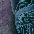 Adjuvant Chemotherapy Helpful for Stage III Mucinous Colorectal Cancer