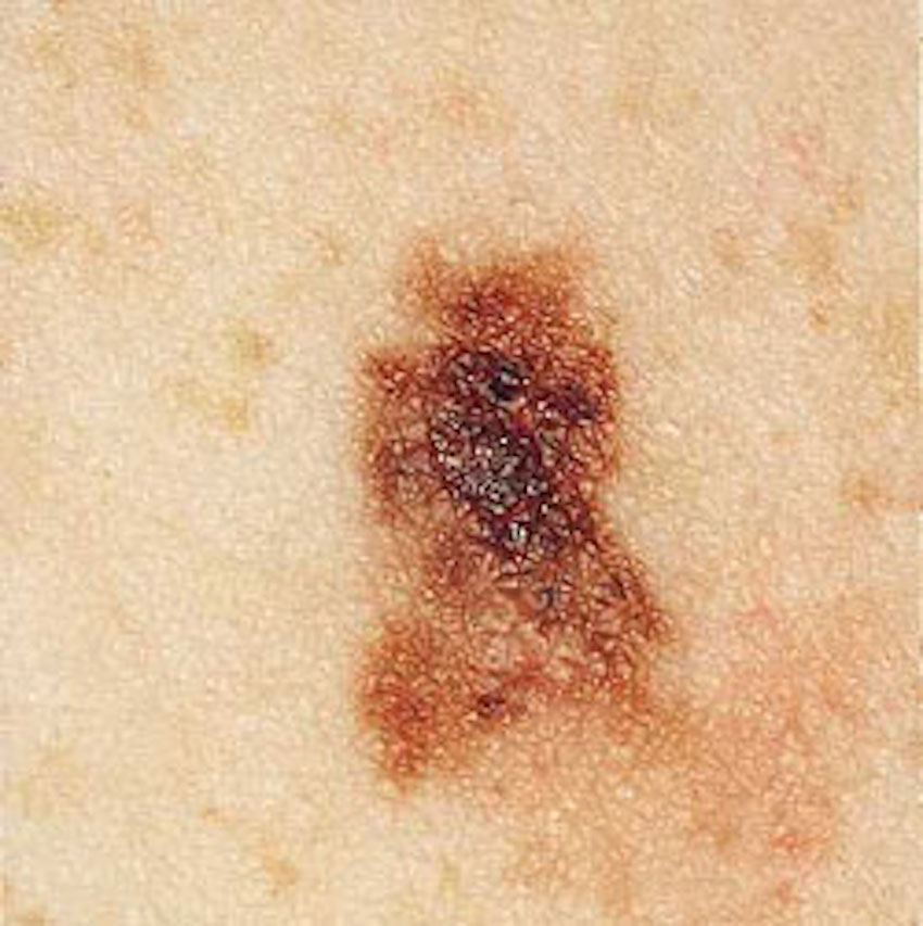 Non-Melanoma Skin Cancer Increases Risk Of Developing ...