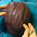 'Scalping' Surgery Only Known Treatment for Rare Cutis Verticis Gyrata Condition