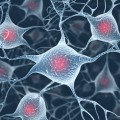 Positive Results for ALS Stem Cell Treatment