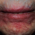 91-Year-Old with Perioral Rash of 2 Years Duration