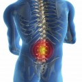 Back Pain Relief from Physical Therapy Less Risky than Surgery