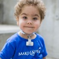 3D Printer Saves Lives of Three Young Boys