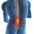 Common Steroid Used to Treat Herniated Discs May Be Ineffective