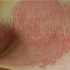60-Year-Old Male with Pruritic Eruption on Arms, Legs, and Trunk