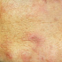 39-Year-Old Male from India with Itchy Eruption on Face