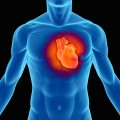 Link Found Between Common Gastric Reflux Drug and Heart Attack Risk