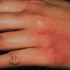 40-Year-Old Female with Tender Rash on Hand