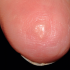 45-Year-Old Woman with Subcutaneous Nodule