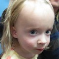4-Year-Old with Progressive Hair Loss