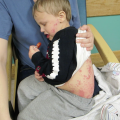 4-Year-Old with Severe, Painful Rash