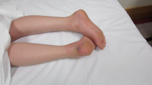 6-Year-Old with Lesion on Heel