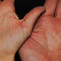 Can You Determine Age from a Hand Comparison?
