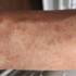 49-Year-Old with Lesions on Extremities for 10 Years