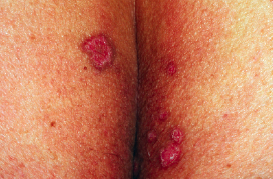 45 year old male with lesions on superior gluteal cleft the doctor s