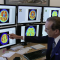 Combination Drug Treatment Reduces Agitation in Patients with Alzheimer's Disease