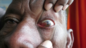 50-Year-Old Male with Lesion on Cornea